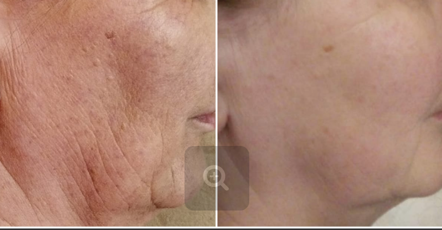 До и после процедур косметология