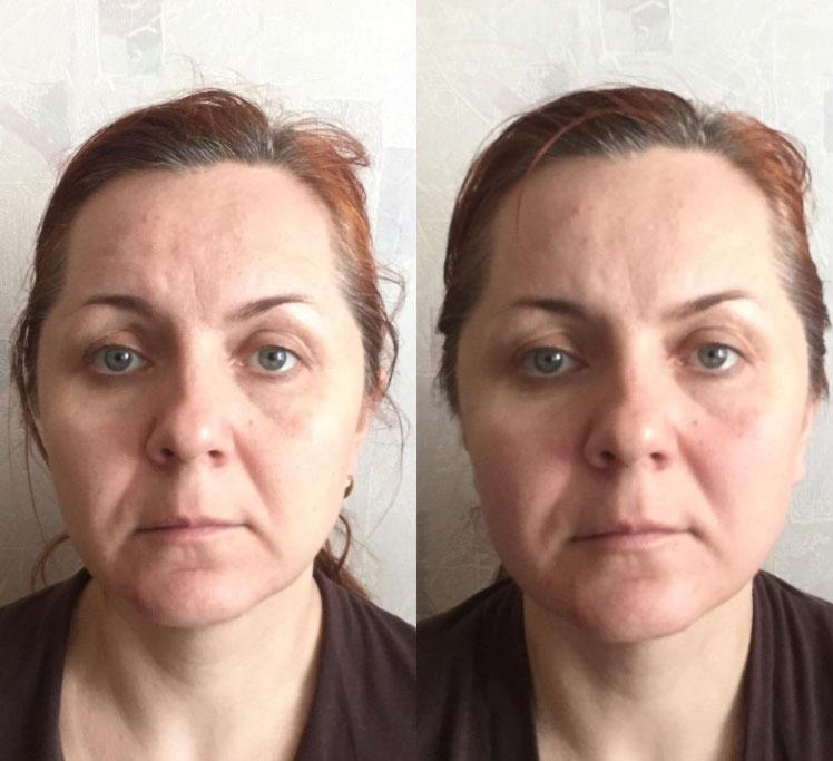 Сплитмассаж - фото после первой процедуры