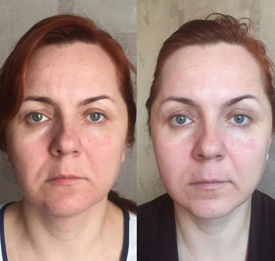 Сплитмассаж фото до и после третьей процедуры