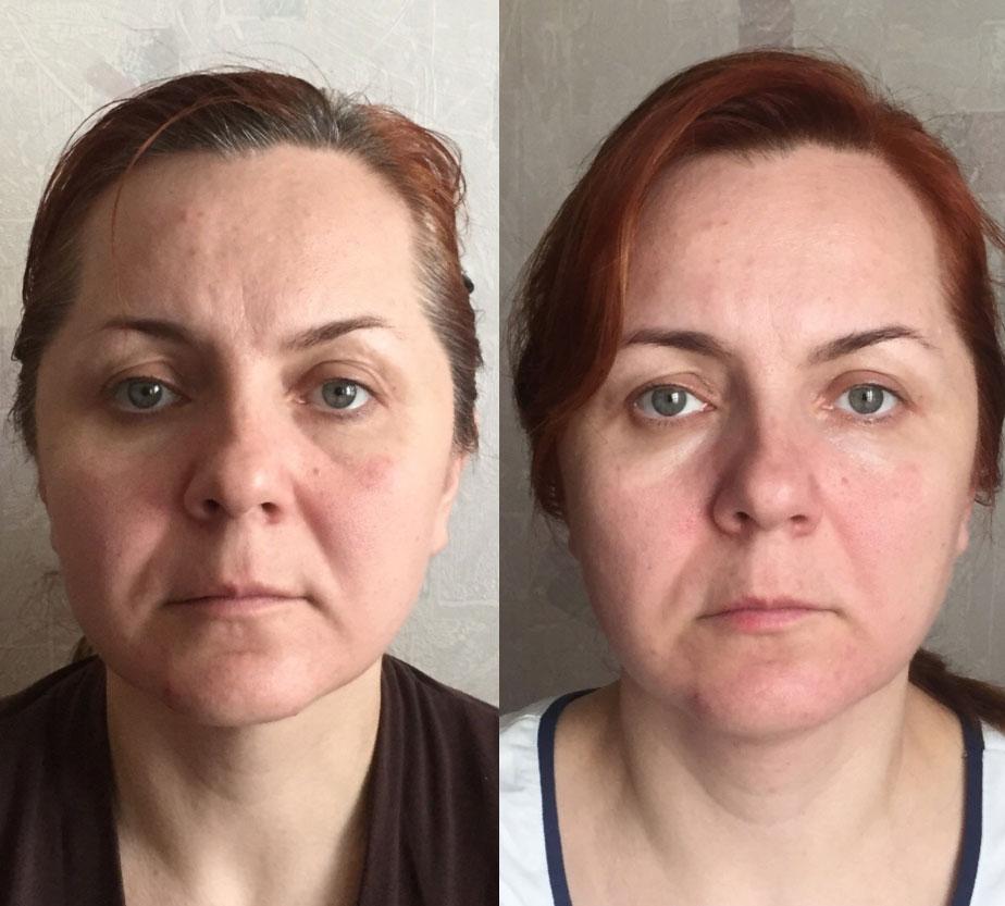 Фото до и после второй процедуры сплитмассажа