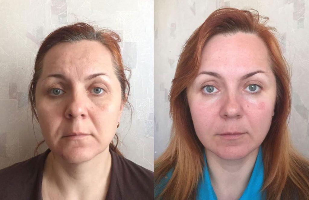 Сплит-массаж лица, фото до и после 5 сеансов