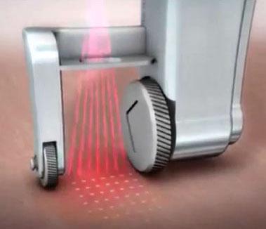 laserpix